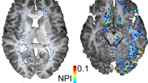 Typical brain images from a American football player (right) and a non-player control. The colored regions show brain areas with a leaky BBB. Note that the player brain shows more leaky brain regions compared to the non-player healthy control. (Photo Credit: Prof. Alon Friedman)